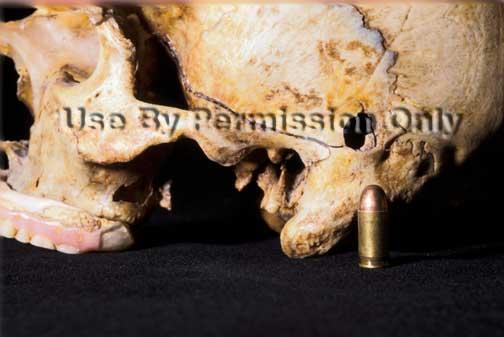 Bullet hole in skull