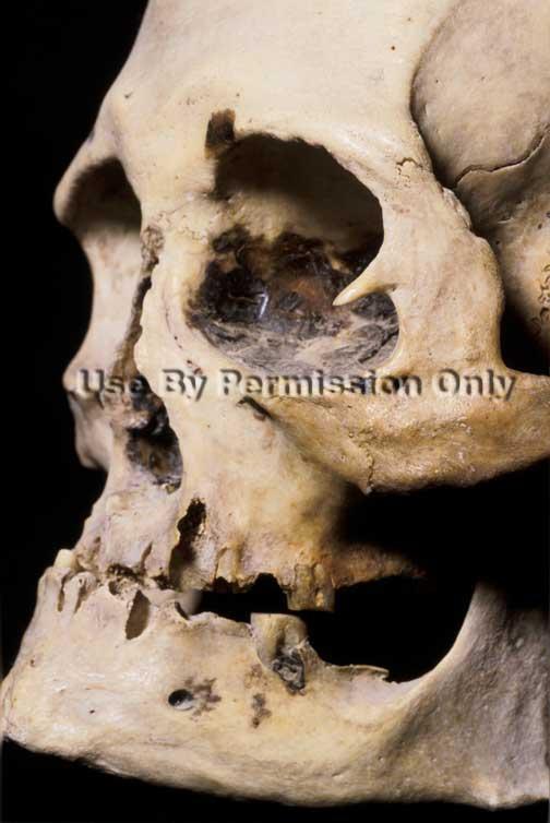 Bone spur by eye socket