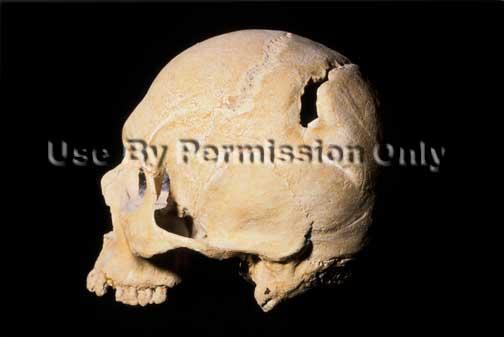 Skull cut by sword