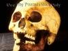 Victim\'s skull